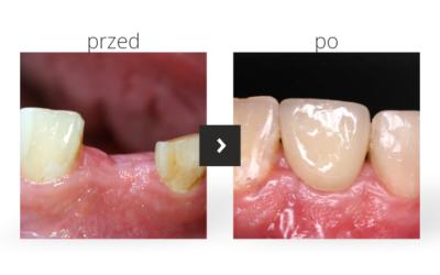 Kompleksowe leczenie implantologiczne braku górnej jedynki