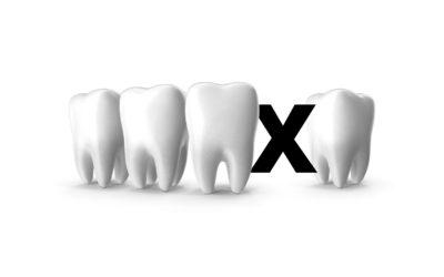 Utrata zęba – destrukcyjna luka?
